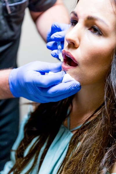 Botox Injections, Dysport Injections, Dysport reviews, Dysport before and after, restylane silk lips, restaylane silk, blackhawk plastic surgery