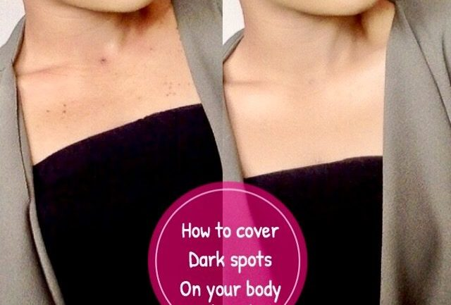 Unwanted acne scars on your body? Annoying dark spots on your chest/back? – How to cover dark spots on your body using makeup- By Lola Oj