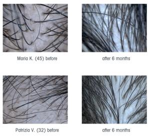stop & grow hairdreams resultaten