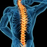 Treating_Spinal_Stenosis