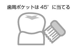 歯周ポケットの磨き方