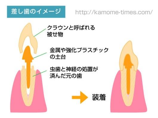 差し歯のイメージ
