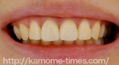 前歯セラミックの差し歯