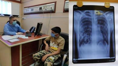 Photo of العتبة الحسينية تستجيب لمناشدة شاب صارع المرض (14) عاماً وتتكفل بعلاجه