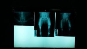 股関節の痛み