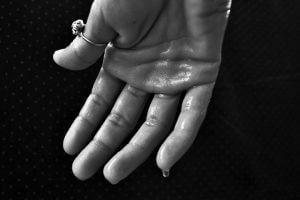 手汗は自律神経失調症