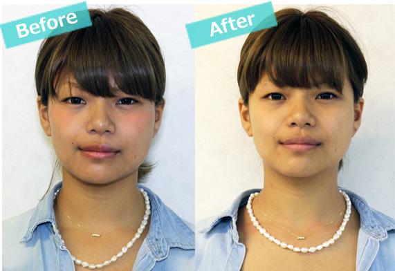 顔の歪み改善例