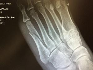Kavita Channe's X-Ray
