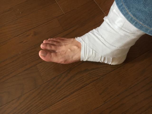 足首の骨折治療に伴う手術の詳細と完治までの経過とリハビリ