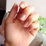 爪が剥がれたら再生する?気になる爪の健康と対処法