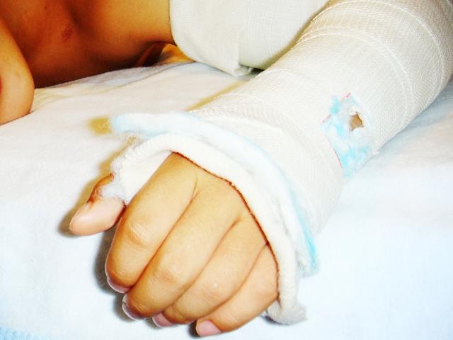 子供が骨折で入院することに…入院費用や期間について