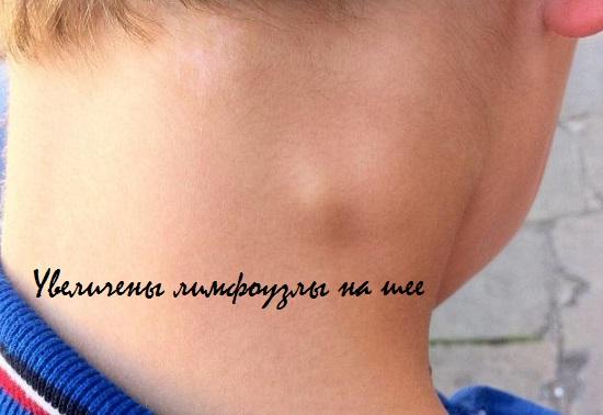 Увеличены лимфоузлы на шее у ребенка   Все о детях, все ...