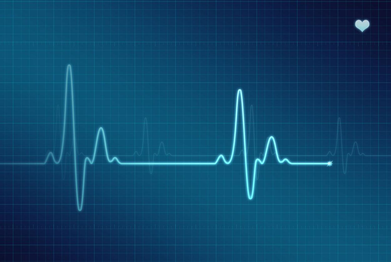 виды аритмий сердца и их характеристика