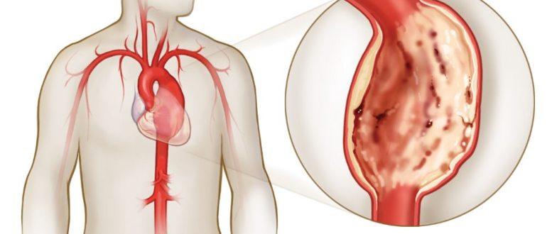 болезни сердца- аневризма аорты
