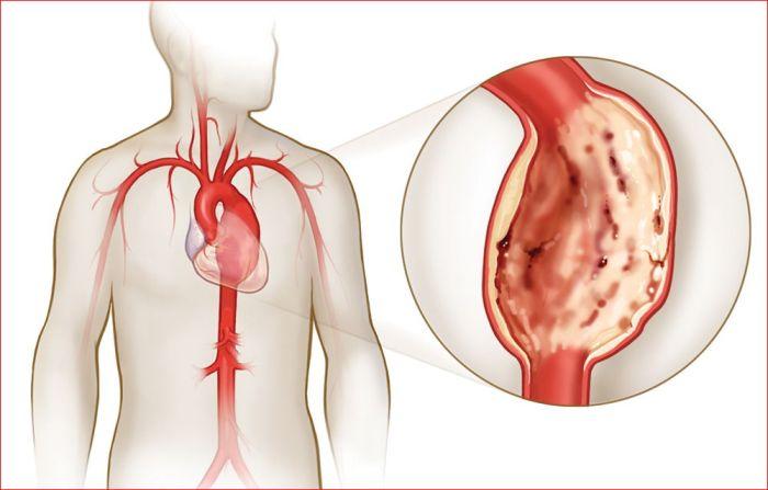 Кальциноз аортального клапана