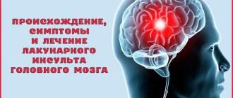Лакунарный инсульт головного мозга: что это такое, симптомы, лечение