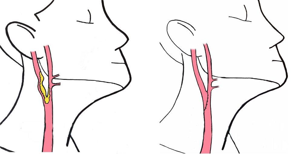 оперативное вмешательство при стенозе сонных артерий