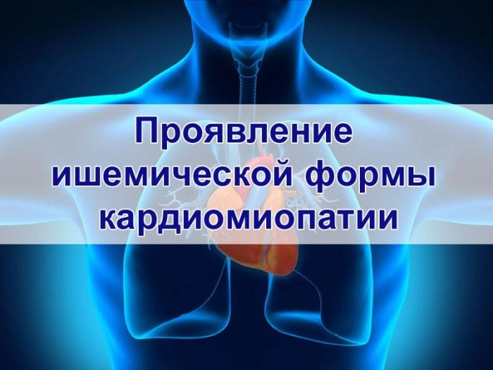 Проявление ишемической формы кардиомиопатии