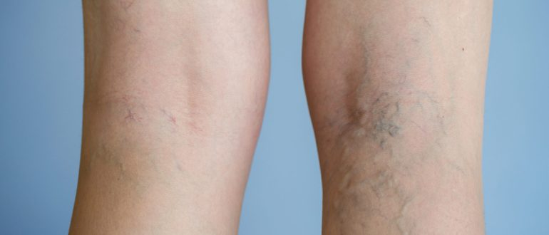 эффективное лечение варикоза вен на ногах