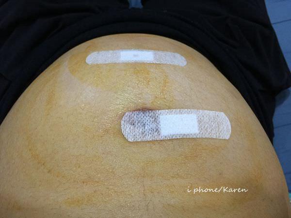 [孕] 19WD3 中國醫藥學院 羊膜穿刺 邱燦宏醫師