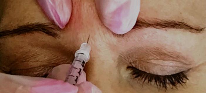 Botox tävling