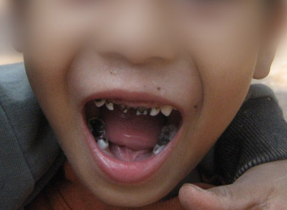A boy's open mouth shows black nubbins where many of his teeth should be, one result of sugar being pushed into the diets of children in societies where the consequences are often not understood..