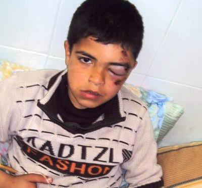 Stone-throwing Israeli settler injures child in Hebron