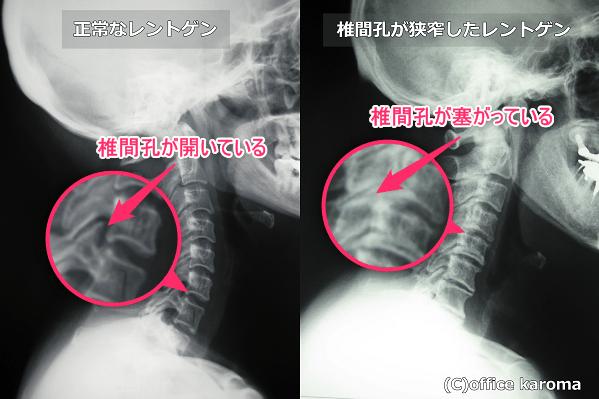 椎間孔狭窄,神経,圧迫,障害