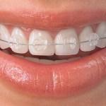 A leggyakoribb tévhitek a fogszabályozásról
