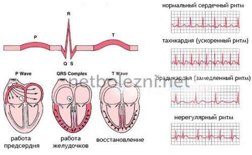 Cơ tim là gì