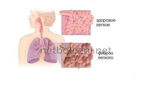 tüdő kötőszöveti betegségekkel)