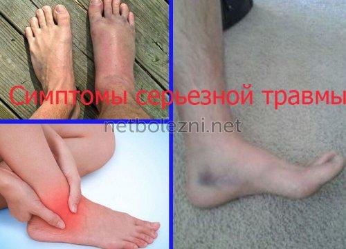 Симптомы серьезной травмы