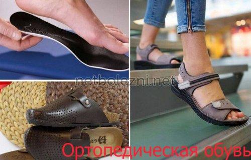 Ношение правильной обуви