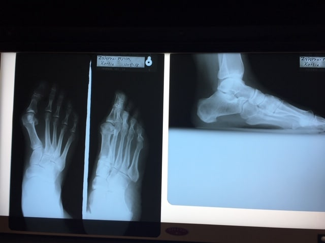 Before Photo of Crooked Foot
