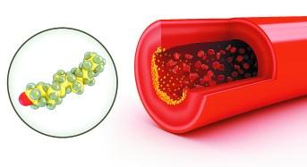 Αναλογία χοληστερόλης: Πώς υπολογίζεται & τι σημαίνει
