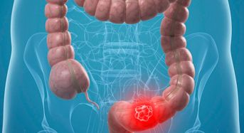 Καρκίνος του εντέρου: 4 τροφές που πρέπει να αποφεύγετε