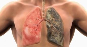 Καρκίνος του πνεύμονα -Πότε εμφανίζονται τα πρώτα συμπτώματα