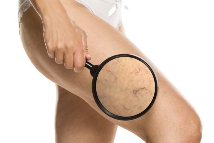 zmiany naczyniowe na nogach