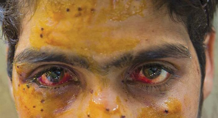 Since August 5th, 36 suffered pellet injuries in Kashmir- Indian Officials