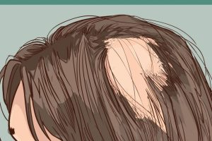 Common Causes Of Scarring Alopecia And Its Treatment