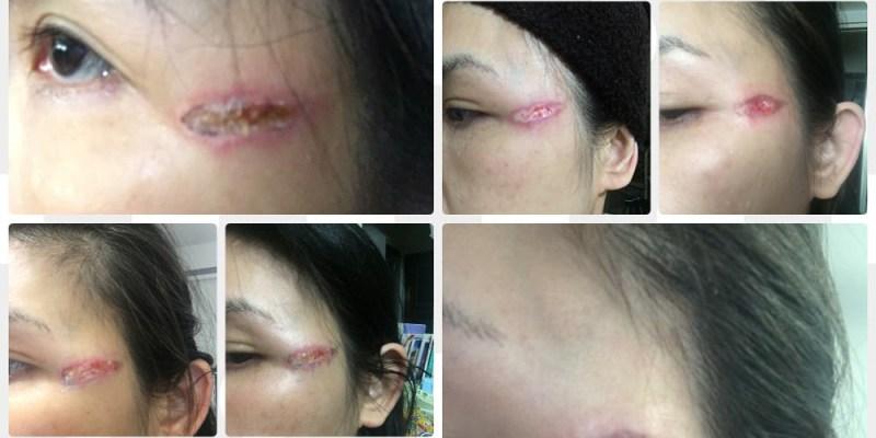 醫美傷人  電波燙傷   疤痕修復全紀錄