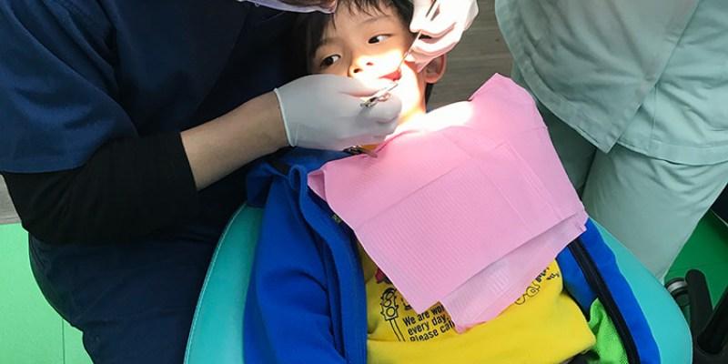 保護牙齒五部曲   窩溝封填幫大忙