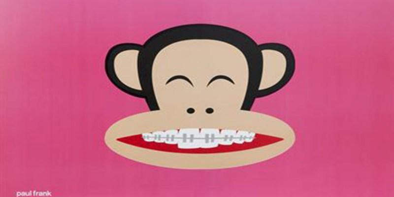 牙套矯正懶人包 (2018/10/20更新)