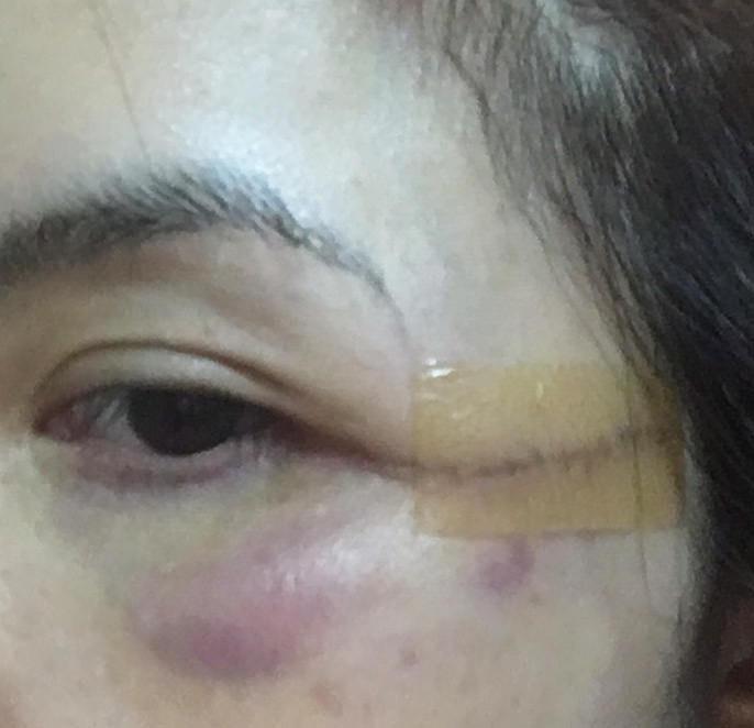 燙傷疤痕造成臉左右不協調 |  自己的臉自己救 (非業配)