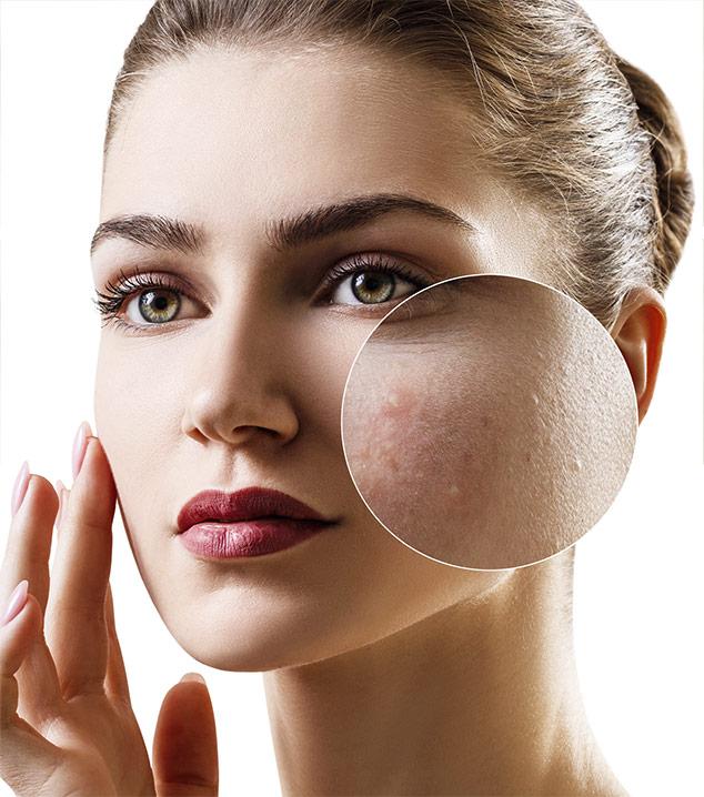 Trattamento Face Filler Natinuel Katanella Beauty Concept