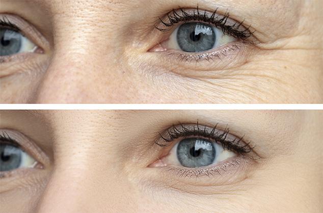 Trattamento The Look Natinuel Katanella Beauty Concept