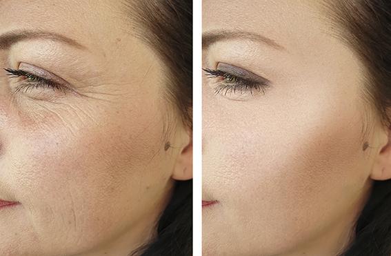 Trattamenti anti-aging viso e contorno occhi Radiofrequenza risultati Katanella Beauty Concept