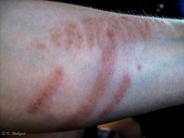 The jellyfish left a mark that stayed on Carros arm a long time.