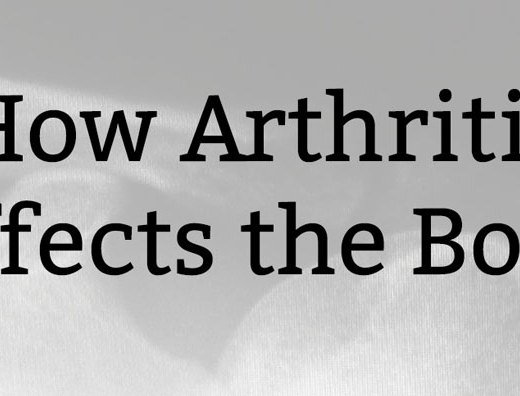 How Arthritis Affects the Body | Kate the (Almost) Great, Boston Lifestyle Blog