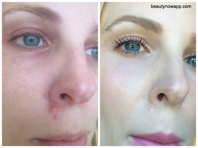 How To Cover Up A Flaky Pimple